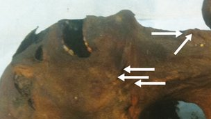 Mumi yang diyakini sebagai Pangeran Pentawere memiliki tanda tidak lazim di leher.