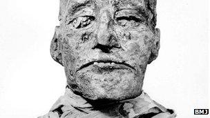 Luka sayatan ditemukan di leher mumi Firaun Ramses III .