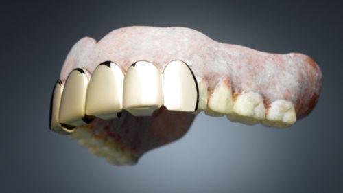Gigi emas palsu yang diambil dari bongkaran makam di