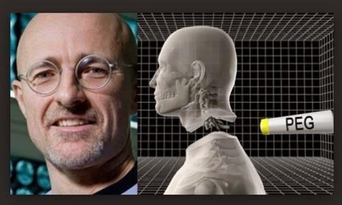 Sergio Canavero, seorang ahli bedah syaraf, hal ini dapat dilakukan. Operasi yang bikin heboh itu adalah soal transpalansi kepala manusia atau penyambungan kepala dan tubuh, atau head transplant. Jadi kepala si C,