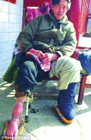 Guan Quanzhi terpaksa menjalani operasi pada lengan kanan kakinya setelah diserang panda liar yang masuk ke kebunnya, Maret 2014 lalu.