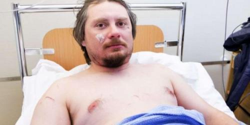 Getty/Mirror Jakub Moravec, turis asal Ceko, harus rela kehilangan kesempatan menonton gerhana matahari setelah dia terluka akibat diserang seekor beruang kutub di tendanya di Pulau Svalbard, Norwegia.