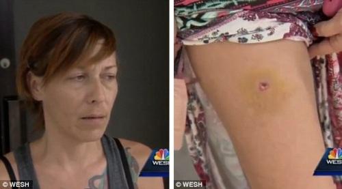Heather Charlebois ( kiri ) merasakan ada yang tak nyaman pada kaki kirinya. Ia baru eling setelah dokter mengatakan,bahwa ada peluru nyasar bersarang dalam kakinya.
