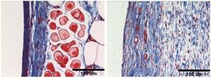 Gambar-gambar ini menunjukkan perbedaan kolagen build- up dalam dua sampel jaringan . Kolagen diberi label dengan warna biru . Gambar kiri menunjukkan dinding kolagen tebal terbentuk di hadapan material yang banyak digunakan untuk perangkat implan . Sebaliknya , kolagen pada gambar kanan lebih merata tersebar di jaringan setelah hidrogel UW - rekayasa telah implanted.Lei Zhang , UW.