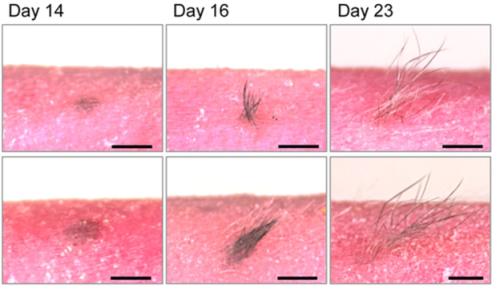 Para peneliti melihat kulit ditransplantasikan akan melalui siklus pertumbuhan rambut normal.