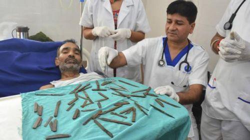 Setelah lima jam operasi, pisau-pisau tersebut berhasil dikeluarkan dari perutnya dengan jumlah 40 buah. Pasien kemudian diobati dalam beberapa hari ke depan.  tim ahli bedan di India tertegun ketika menemukan 40 pisau logam dari perut seorang pasien.