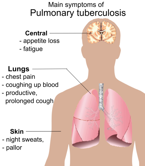 "Tuberkulosis paru merupakan penyakit menular, disebabkan kuman ""Mycobacterium Tuberculosis"". Bakteri tersebut biasanya masuk kedalam tubuh manusia melalui saluran pernafasan ke dalam paru, kemudian menyebar dari paru kebagian tubuh lainnya, melalui sistem peredaran darah, sistem limfa, saluran pernafasan atau menyebar langsung kebagian tubuh lainnya. ( Public Health Home )"