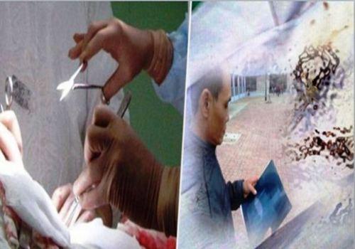 Operasi dokter bedah berusaha mengeluarkan gunting yang bersarang dalam perut Ma Van Nhat.